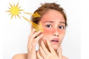اثرات نور خورشید بر پوست